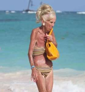 Hunched old Lady in a bikini